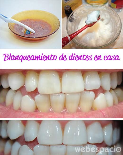 blanqueamiento-de-dientes-en-casa
